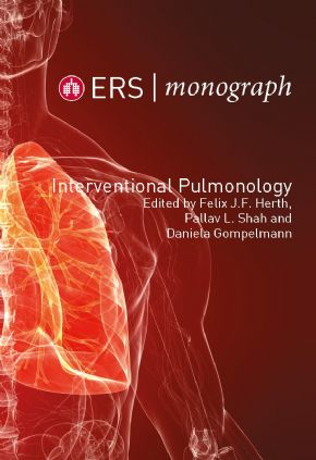 Interventional Pulmonology